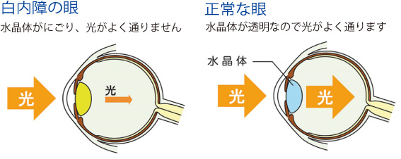 白内障の眼と正常な眼