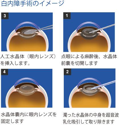 白内障手術のイメージ