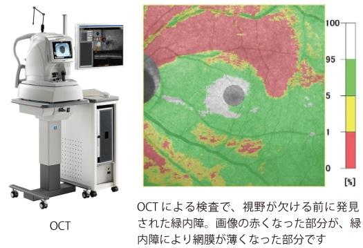 OCTによる検査で発見された緑内障。