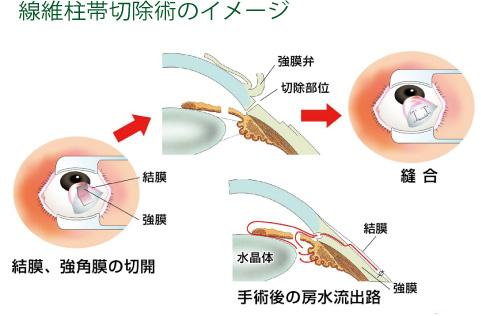 線維柱帯切除術のイメージ